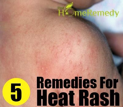how to treat heat rash naturally effective home remedies