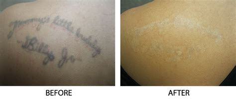 tattoo removal long island before after photos removal island