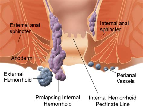 piles pictures and symptoms diagrams piles symptoms causes and treatments