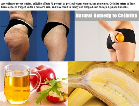 best cellulite remedies 8 best cellulite remedy images on