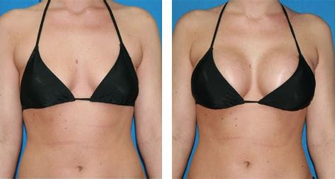 breast lift before and after photos plastic surgery breast implants enhancement cosmetic surgery guide
