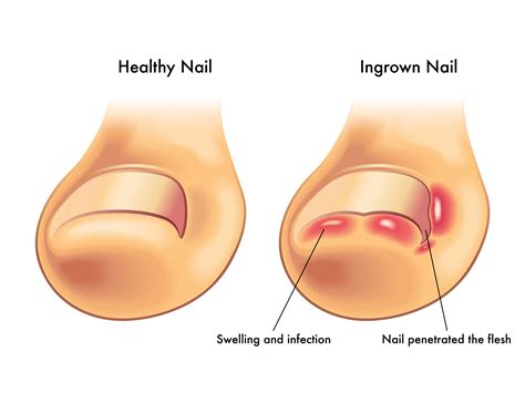 13 Tips On How To Treat In Grown Hair by 5 Signs It S Time To See A Podiatrist For An Ingrown