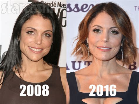 Bethenny Frankel Plastic Surgery Before And After | did bethenny frankel have plastic surgery