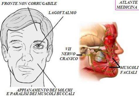 dolore interno al seno sinistro emiparesi cerebrale scopriamo quali sono i sintomi