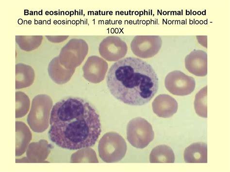 Mba Neutrophil Blood Preparation by клеточное строение костного мозга презентация онлайн
