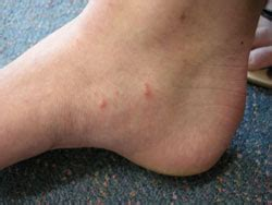 hot shower scabies best practice 19 february 2009 scabies diagnosis and