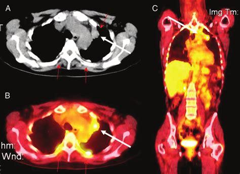 fdg pet scan identification   primary lung carcinoma   patient  scientific