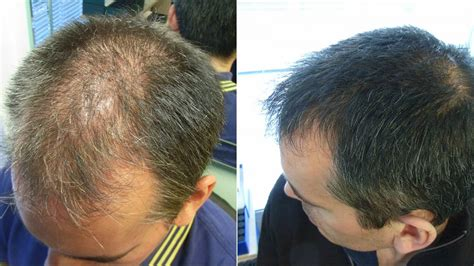 male pattern hair loss emedicine the hair centre male hair loss