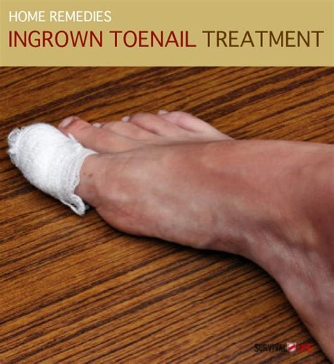 home remedy ingrown toenail treatment homestead survival