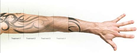 tattoo removal stages photos laser removal dublin ink