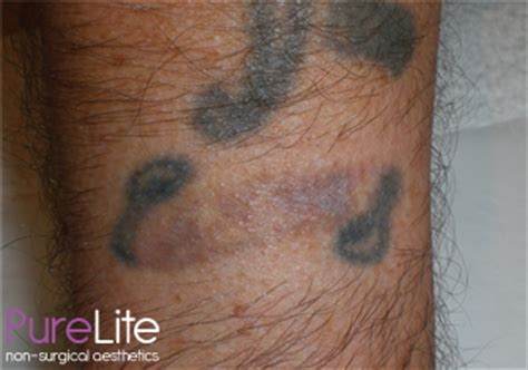 does laser tattoo removal really work testimonials reviews pleased with your results let us