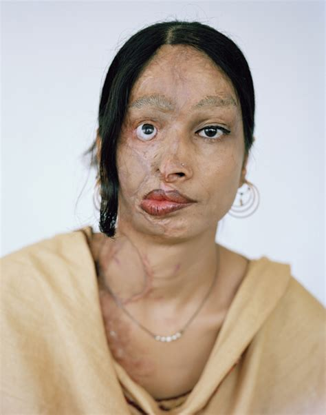 burn victim meaning acid attacks in pakistan portraits of women survivors