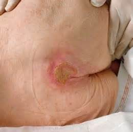 bed sores pics how to prevent bed sores pressure sores