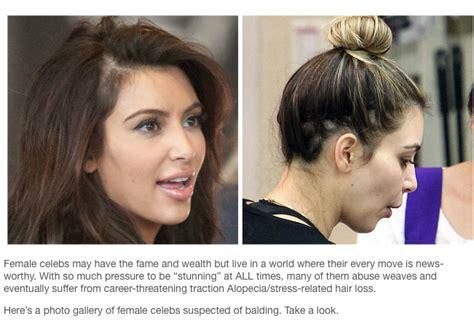 celebrity hair growth celebrity hair loss