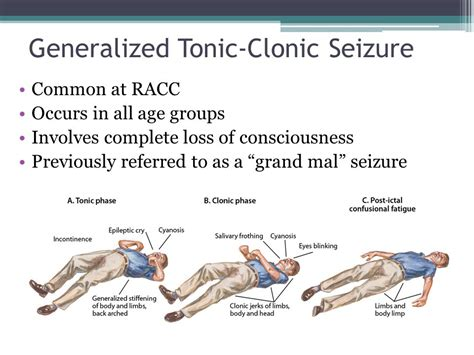 Detox Grand Mal Seizure by Seizure Disorder The Disability Ppt