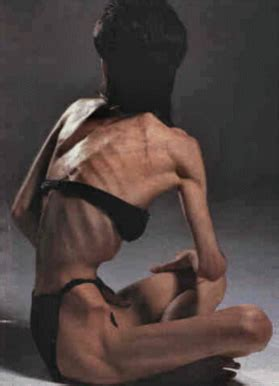 pro anorexia websites to become illegal