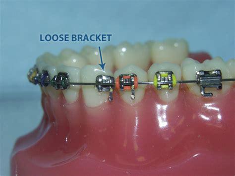 braces kifer dental specialist dr doan dds mmsc