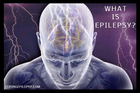 brain teasers living with epilepsy and sclerosis books what is epilepsy