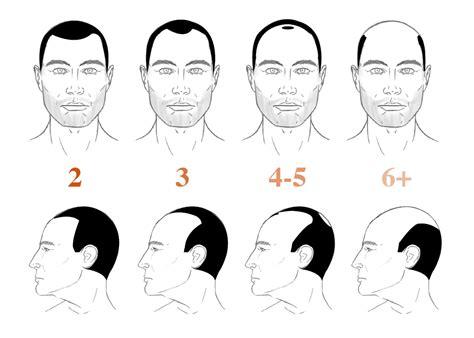bandage hair shaped pattern baldness norwood hamilton scale measuring hair loss