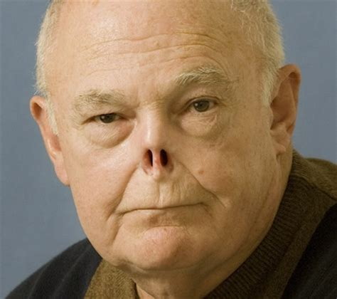 nose cancer prosthetics eye prosthesis nose prosthesis resources
