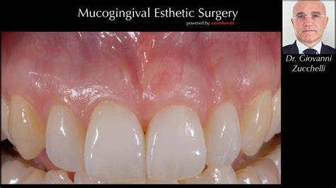 surgical esthetic correction for gingival pigmentation mucogingival esthetic surgery dr giovanni zucchelli