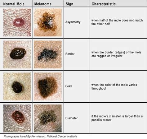 cancerous moles the difference between a normal mole and