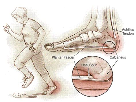 Planters Fasciitis Symptoms by Plantar Fasciitis Patient Information Jama The Jama