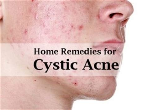 Best At Home Acne Treatment by Omega369health