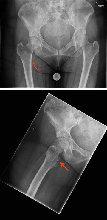Fracture of the lesser trochanter as a sign of undiagnosed