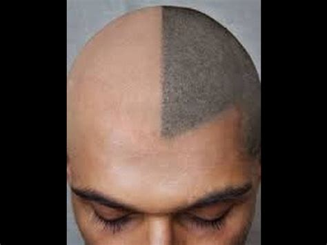 the ultimate solution of baldness hair tatoo youtube