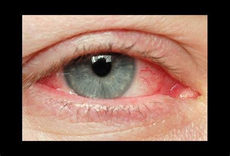 my eye is red watery and sensitive to light red itchy and watery eyes oh my intermountain