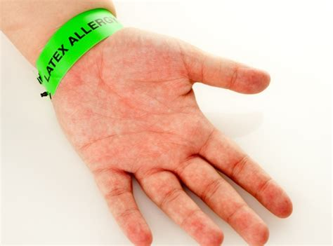 imagenes alergia al latex 4 cosas que debes saber sobre la alergia al l 225 tex blog