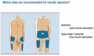Galerry insulin injection diagrame