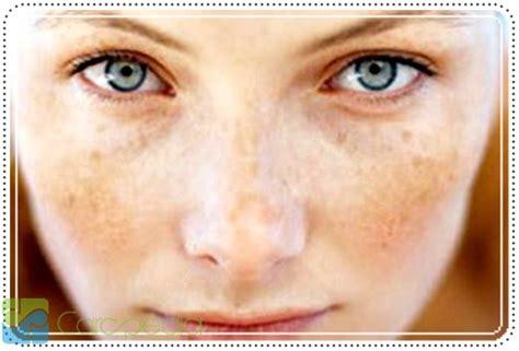 Pemutih Nourish Skin nourish skin untuk memutihkan kulit pemutih kulit alami
