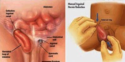 Agaricpro Obat Hernia ramuan obat hernia alami cara mengobati hernia