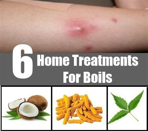boil home remedy treatment boils relief