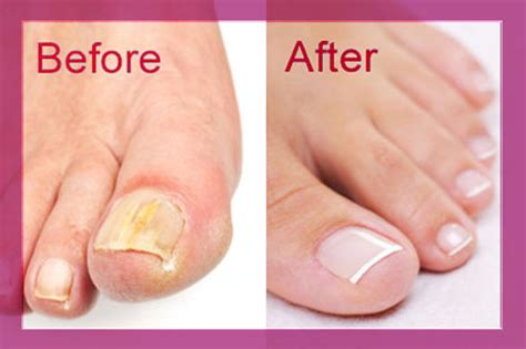 damaged nail bed do you want strong glamorous nails 8 tried and tested