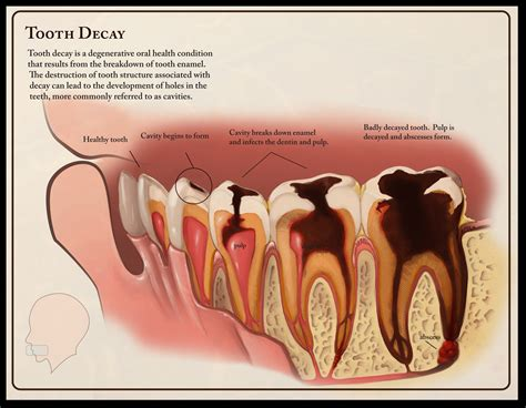 dental testimonials cure tooth decay tooth decay dentistry pinterest fluoride treatment