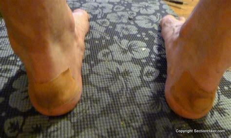 leukotape for blister prevention section hikers
