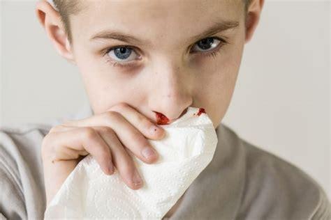 sangue sedere nasenbluten stoppen erste hilfe tipps