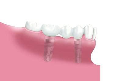 Beschriftung Zahn by Zahnimplantate Zahn 228 Rzte Der Tagesklinik Buchloe