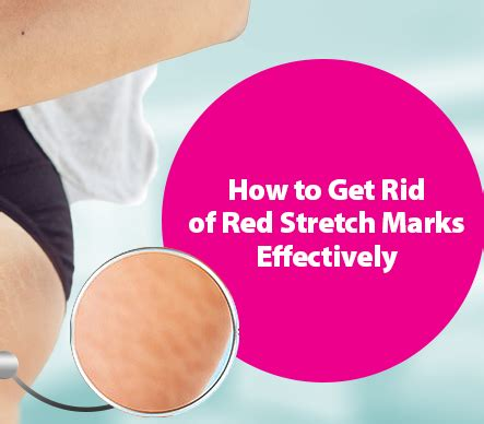 how t get rid of red in salt amd pepper hair how to get rid of red stretch marks effectively