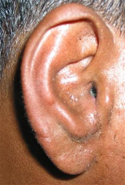ear yeast infection yeast ear infections in cats treatment yeast infection tips