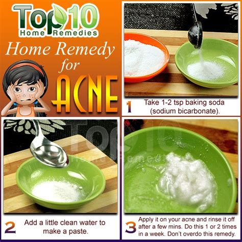 acne home remedies home remedies for acne top 10 home remedies