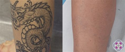 laser tattoo removal history laser tattoo removal how a tattoo is removed