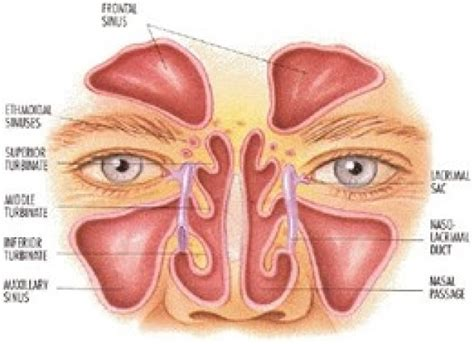 Asal Sinus sinusitis the cystic fibrosis center at stanford stanford medicine
