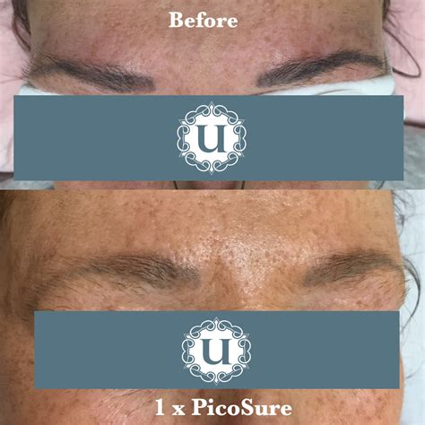 eyebrow tattoo removal london laser removal permanent makeup eyebrow mugeek