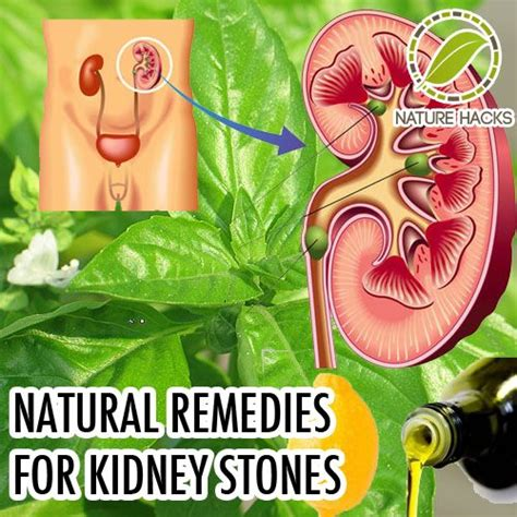 home remedies for kidney stones medicine