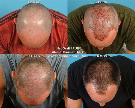 what is the cost of neografting the hair line mega fue hair transplant using neograft flickr photo