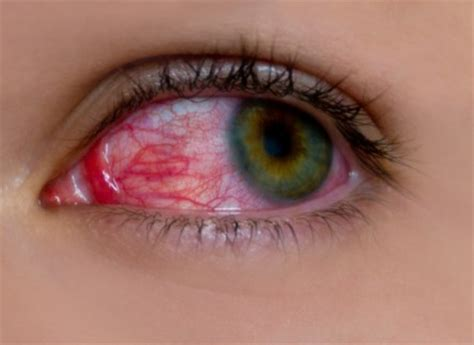 5 tips for preventing eye infections healthtard